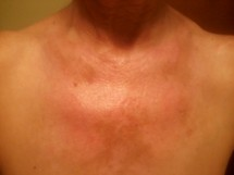 Sunburned Chest
